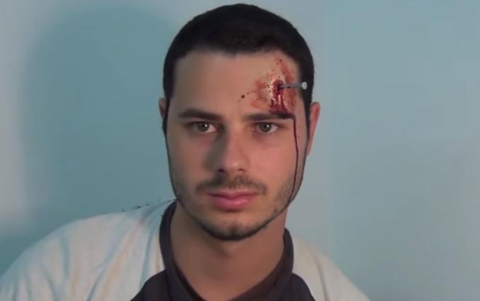 blessure clou halloween